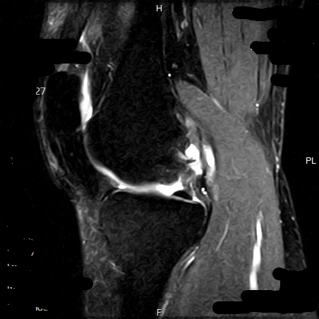 MRI Image of right knee showing fluid in bone. (Personal information was blurred out because noneya.)