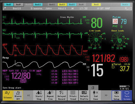 Patient Monitor.jpg