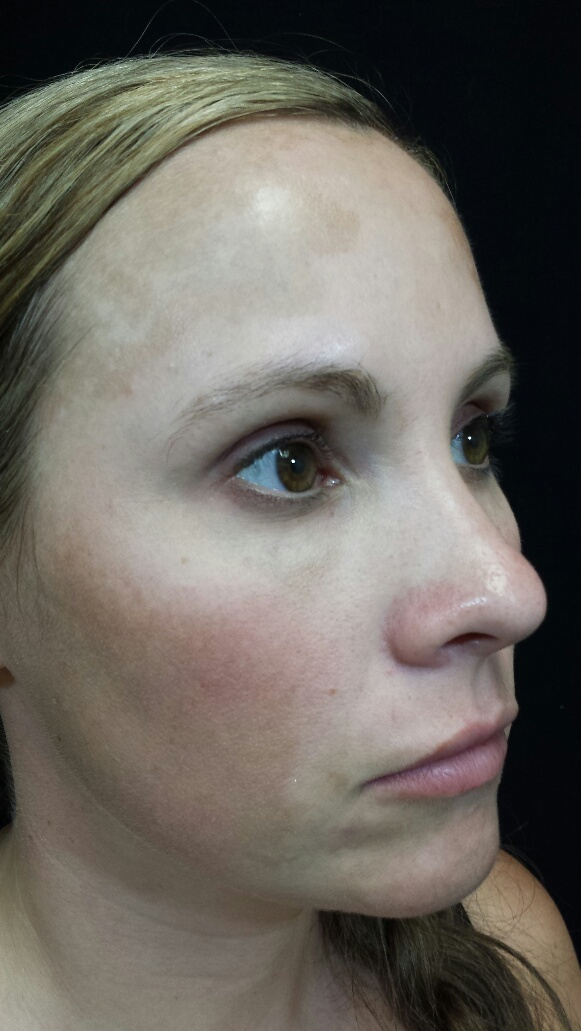 Before Melanage Peel