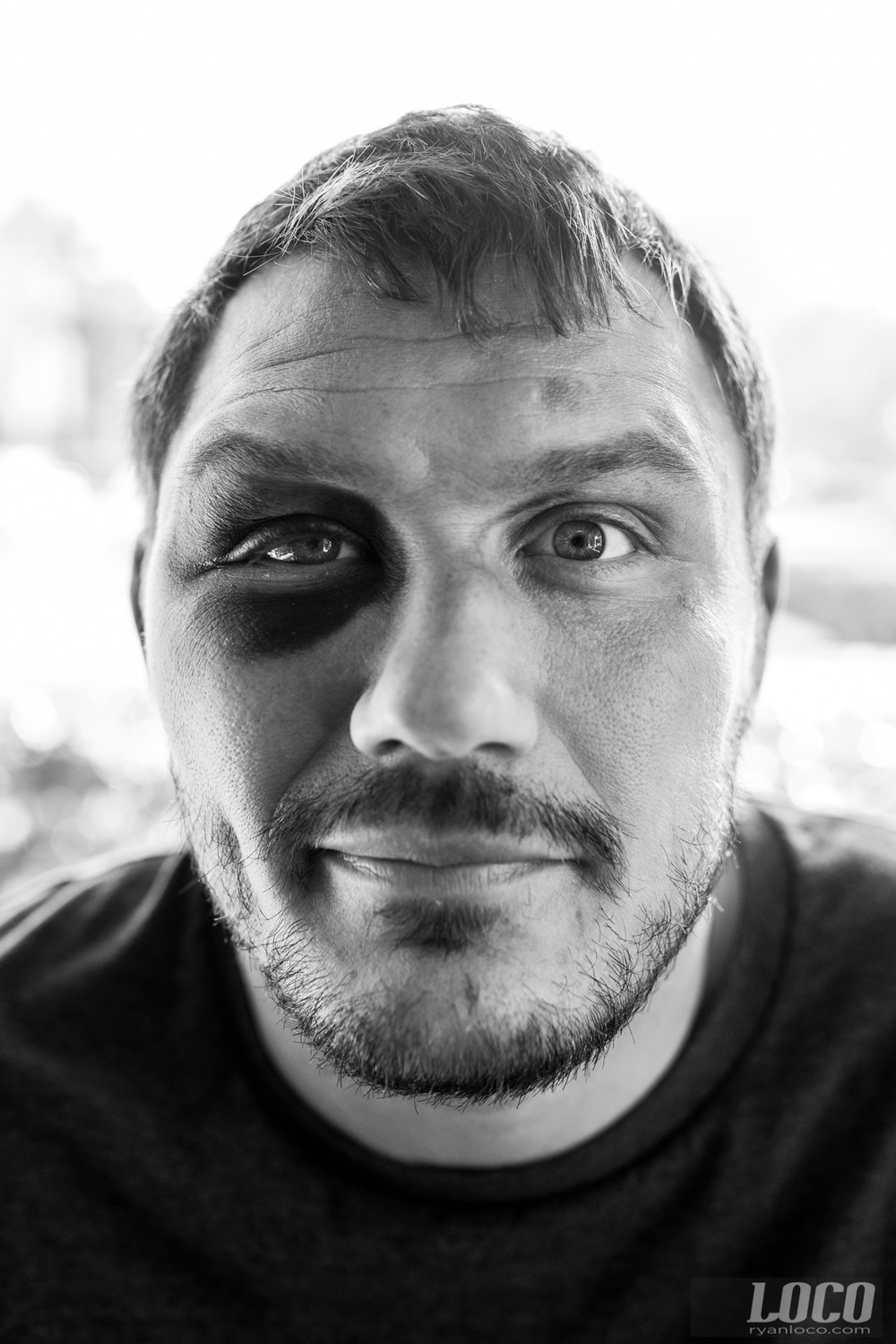 Portrait of Matt Mitrione after his fight with Travis Browne. Multiple eye pokes and a broken orbital bone will leave you with this sorta eye makeup.