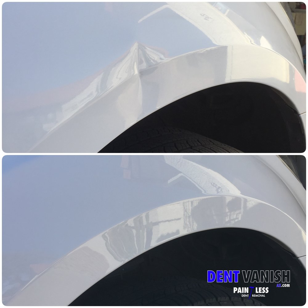 Bodyline Dent before and after