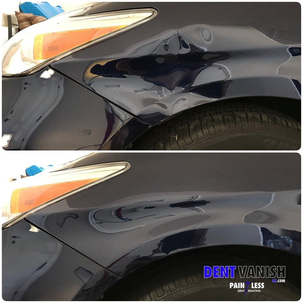 85% PDR repair
