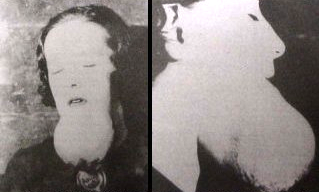 """Radium jaw,"" 1924.  Link ."