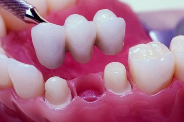 Dental Bridges, Smile Concepts, Dentist, Christchurch