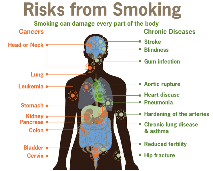 745px-Risks_form_smoking-smoking_can_damage_every_part_of_the_body.png