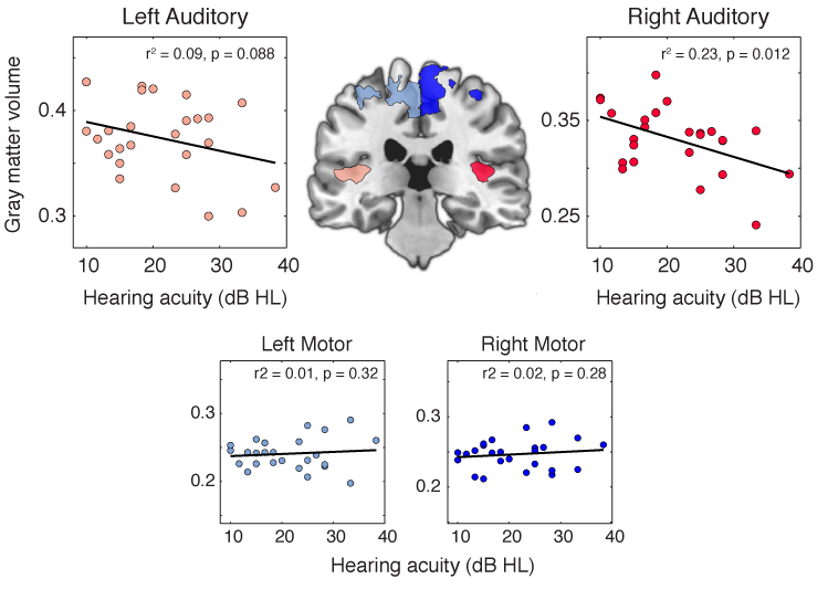 Variation in normal hearing in a group of adults over the age of 60 was significantly related to the amount of gray matter in primary auditory cortex: people with poorer hearing ability had less gray matter. (From Peelle et al., 2011,  Journal of Neuroscience )
