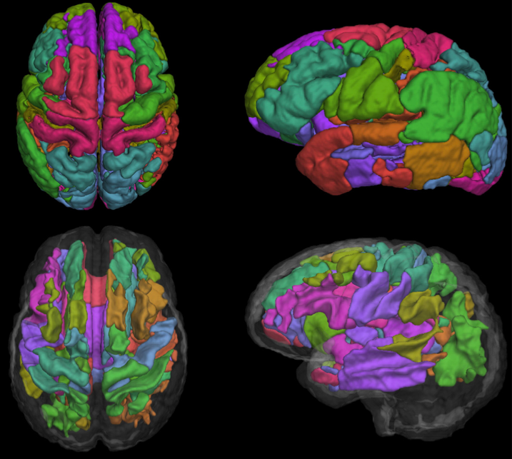 Regions of interest for cortical thickness (top row) and FA (bottom row) defined by eigenanatomy.