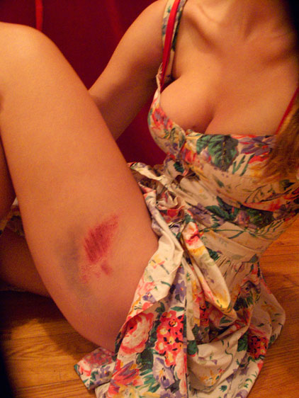 ALEX_BRUISE_IMG_8077-with--copy.jpg