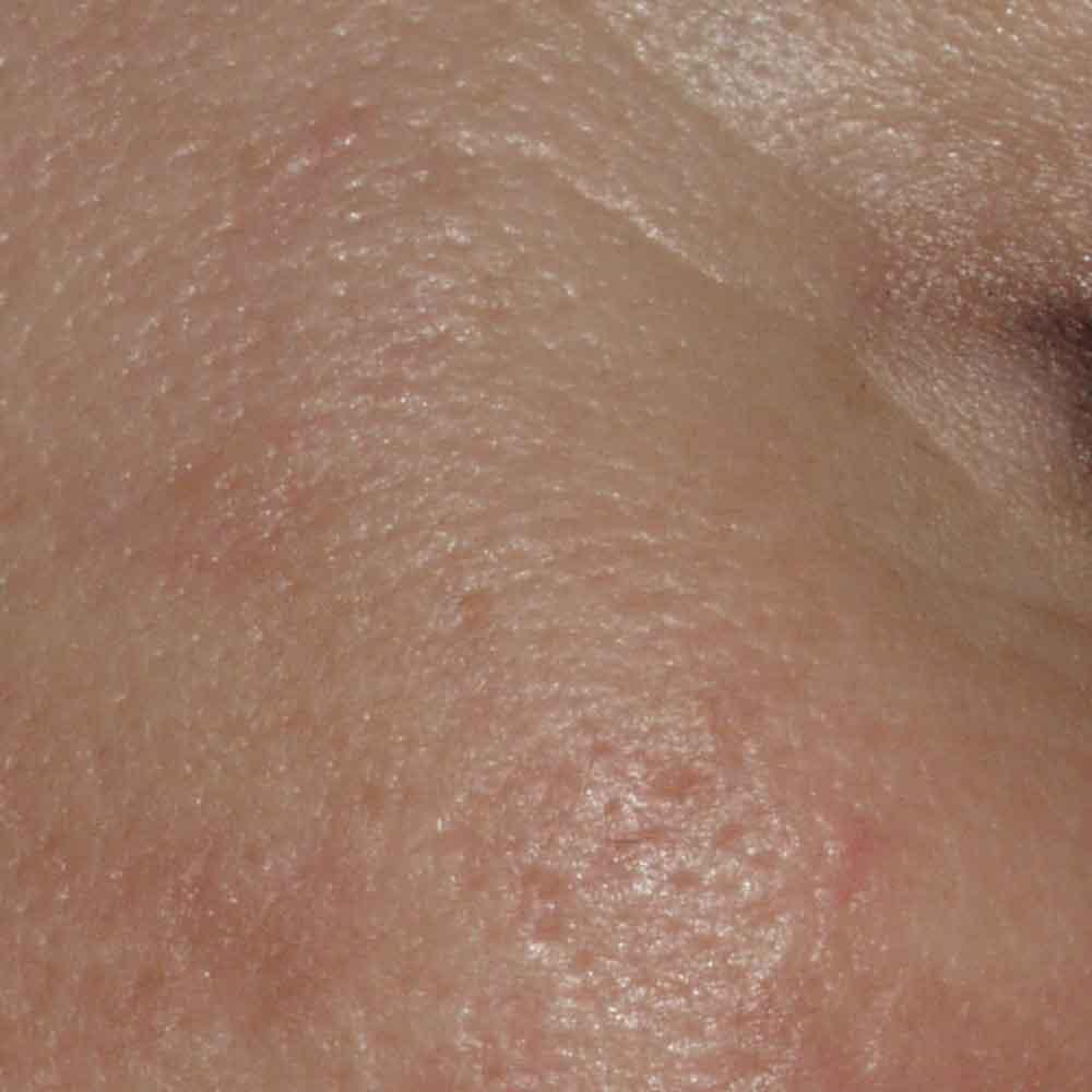 Grobporige Haut
