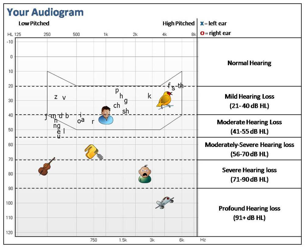 audiogram and degrees of hearing loss. Also different sounds that can be impacted by hearing loss