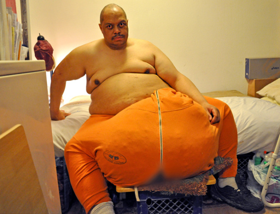 man-with-the-132-lb-scrotum.jpg