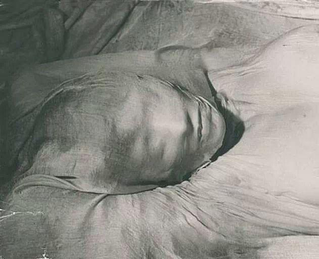 Erwin Blumenfeld (1937)