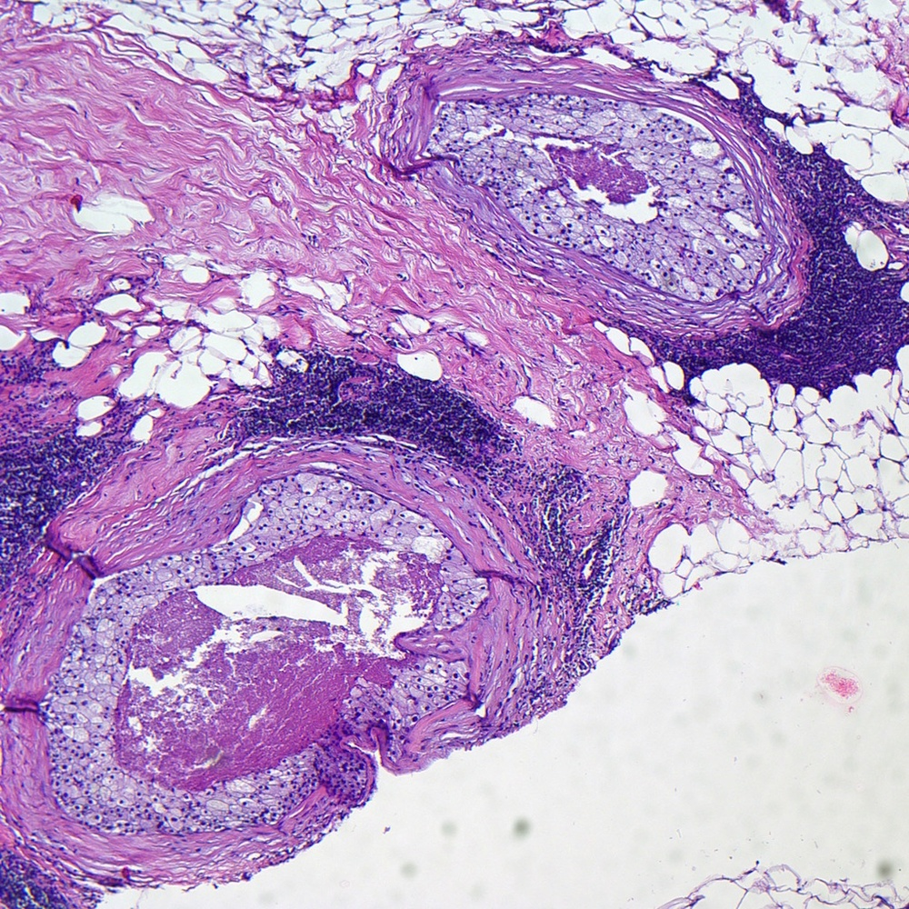 Stereotactic core biopsy from a 64 year old woman