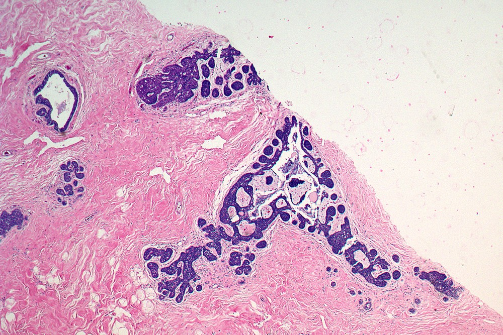 At higher magnification, a cellular proliferation is evident that involves several lobular units and adjoining ducts.