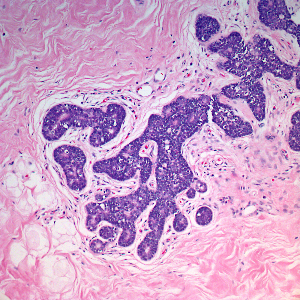 Small lumens with eosinophilic material are formed by the cellular proliferation.