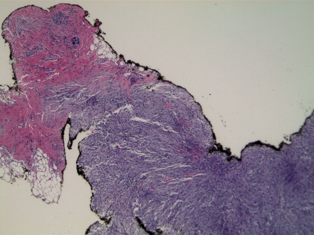 Image 1.  Core needle biopsy specimen contains a spindled cell proliferation; note small amount of normal breast tissue at upper left.