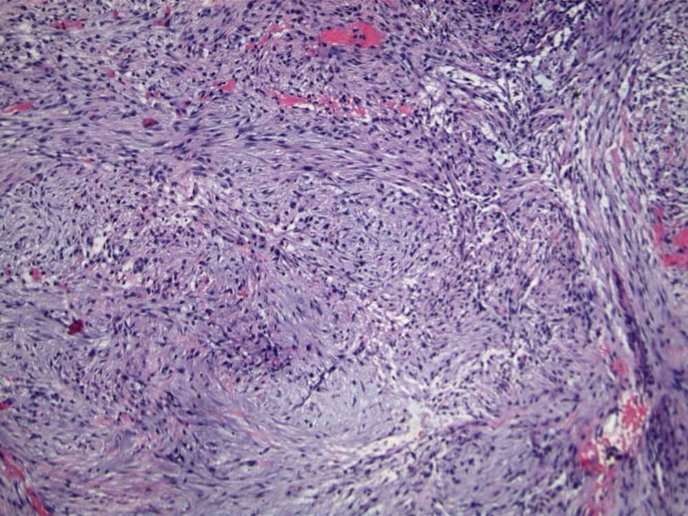 Image 2.  Spindled cells are arranged in swirling fascicles and are associated with a myxoid background and focal hemorrhage.