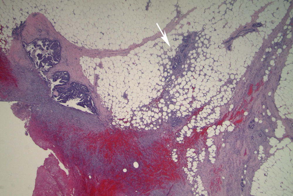 Image 1.  Excisional biopsy specimen shows an epithelial proliferation within dilated ducts (left) and the recent biopsy site.  Several separate small cellular nests (arrow) have an infiltrative appearance.
