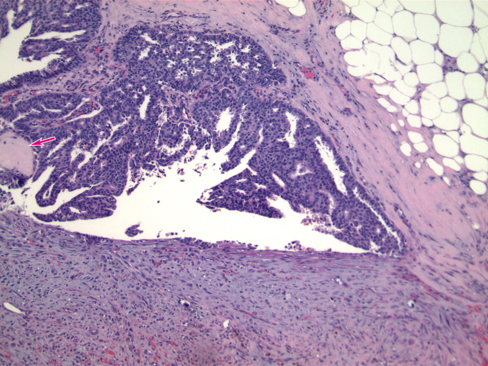 Image 2.   The duct contain a uniform population of cells arranged as cribriform structures, diagnostic of low grade ductal carcinoma in situ.  The DCIS involves a dilated duct, and there are a few fibrovascular cores (arrow) associated with the DCIS, characteristic of involvement of an intraductal papilloma.
