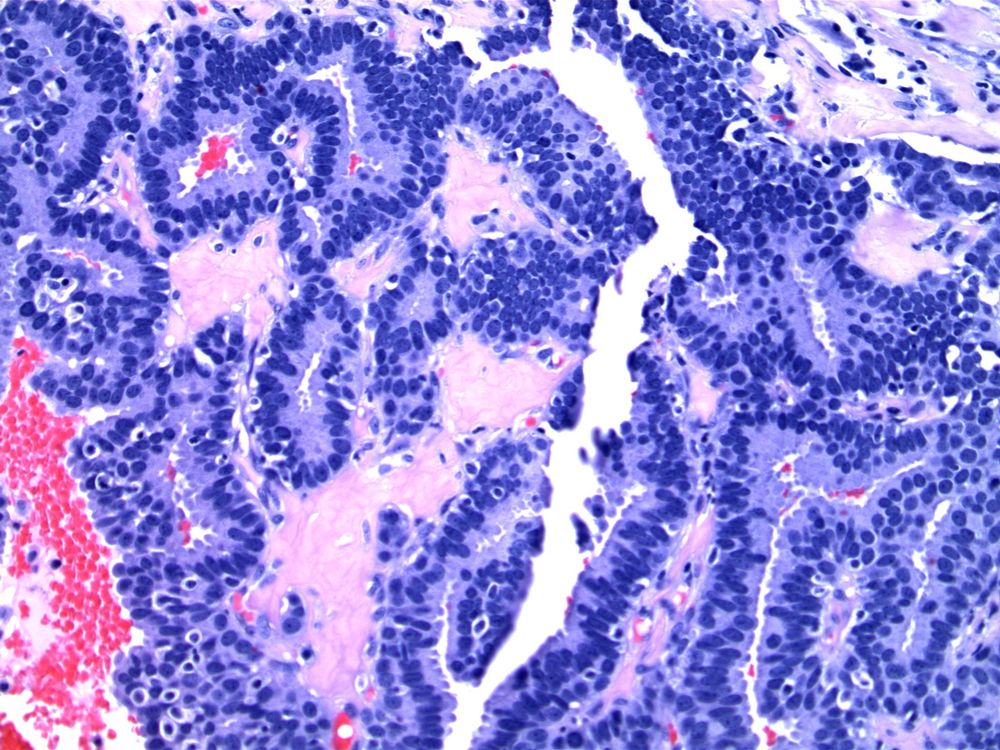 Image 5.  Fibrovascular cores are lined by uniform cells.