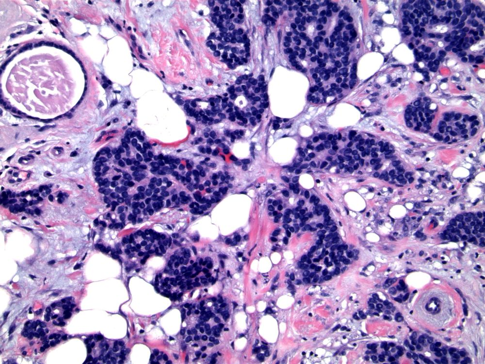 Image 3.  Invasive carcinoma is composed of small, uniform cells with 'basaloid' appearance, but no mitotic activity.