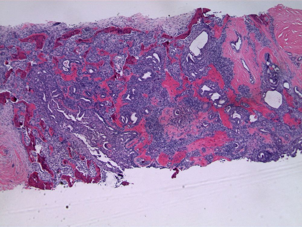 Image 2.  The epithelial proliferation is arranged in a streaming or swirling pattern, with irregular secondary spaces.