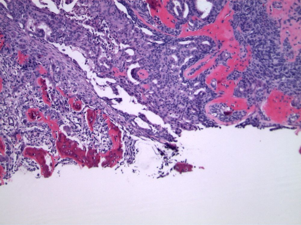 Image 3.  Nuclear overlap and variability define the process as florid hyperplasia without atypia.  Rare sclerotic fibrovascular cores are evident, supporting origin within an intraductal papilloma.  Reactive osseous metaplasia is also present.