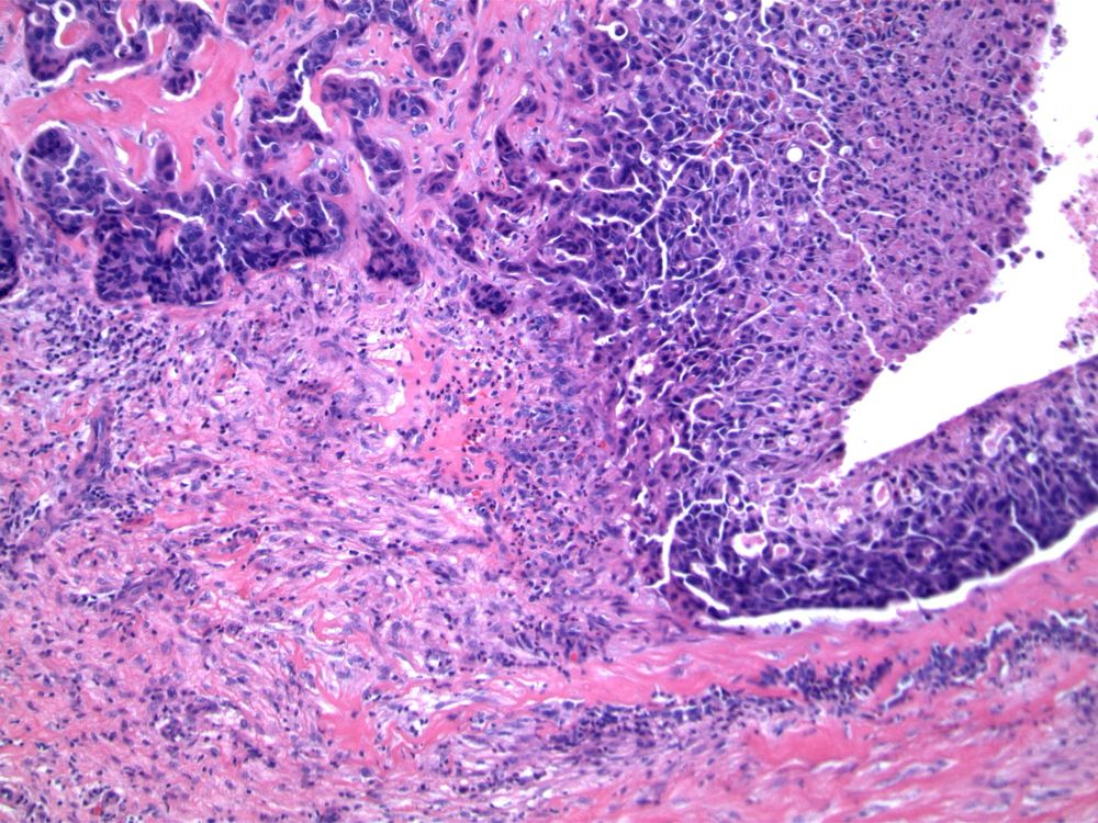 Image 3.  Abrupt disruption of encircling fibrous duct wall and presence of granulation tissue are characteristic of previous biopsy procedure.