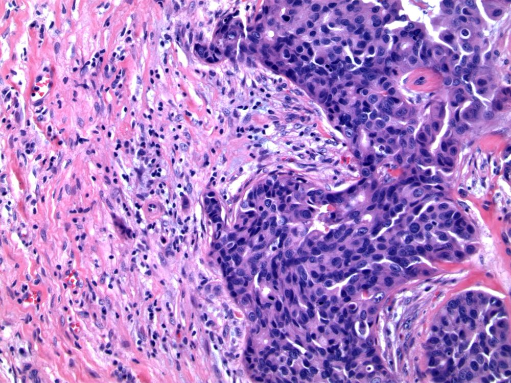 Image 5.  Granulation tissue contains occasional degenerating epithelial cells, characteristic of previous biopsy procedure.