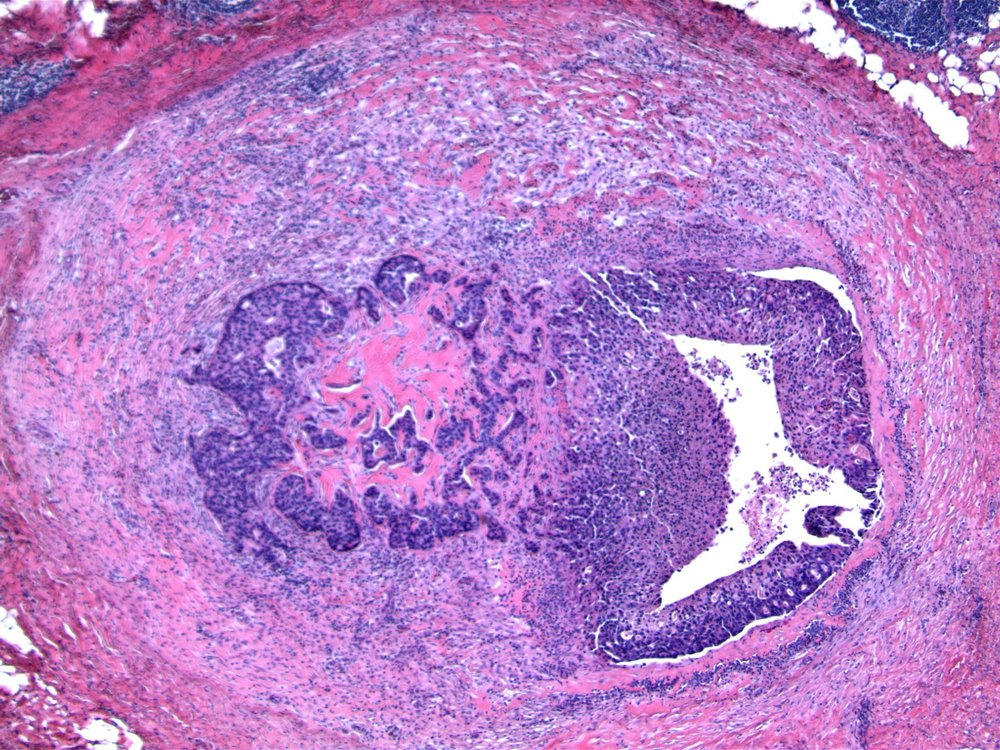 Image 2.  The right side of the image shows ductal carcinoma in situ, bounded by intact duct wall.  The left side of the image shows irregular nests of neoplastic cells mixed with hyalinized material, and disruption of the encircling fibrous tissue.