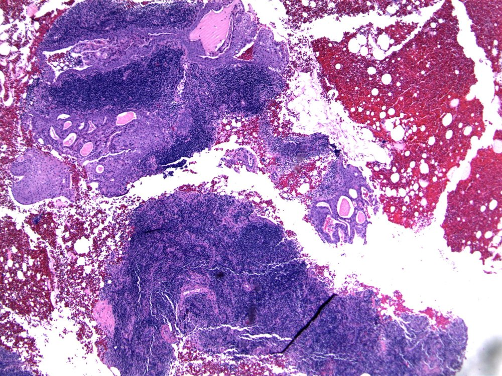 Image 1.  The core biopsy of the lymph node contains epithelium, with areas of squamous metaplasia.