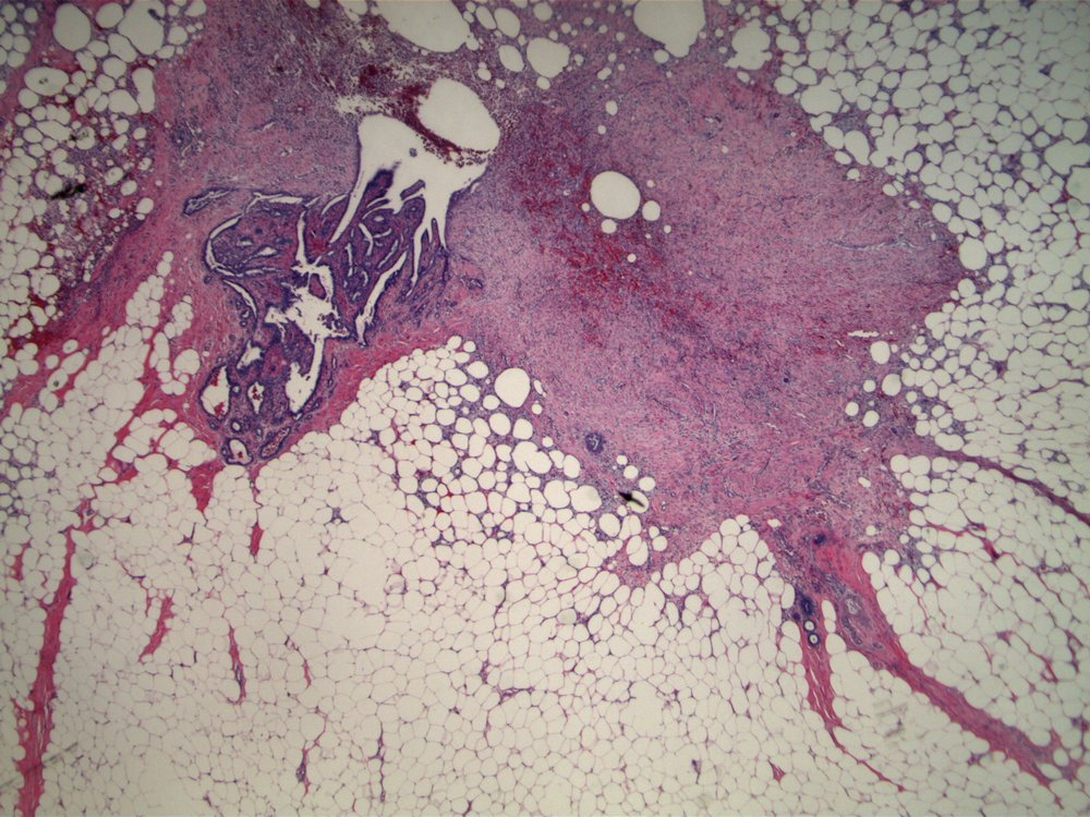 Image 4.  The previously biopsied second breast nodule is an intraductal papilloma; note biopsy site changes.