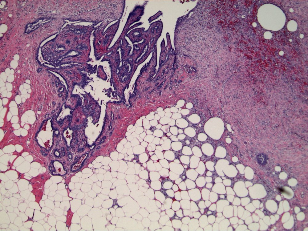 Image 5.  There is minimal epithelial proliferation associated with this benign intraductal papilloma.