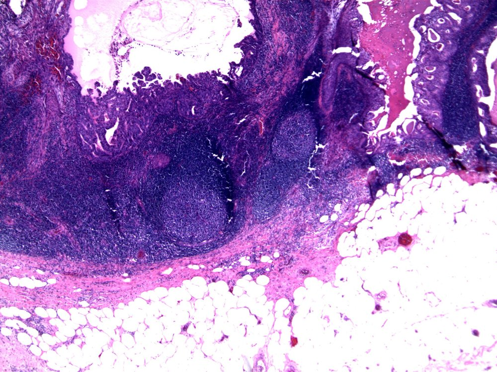 Image 6.  One of eight lymph nodes contained epithelium, similar to that seen in the core biopsy of the enlarged lymph node (image 1).  Note papillary architecture.