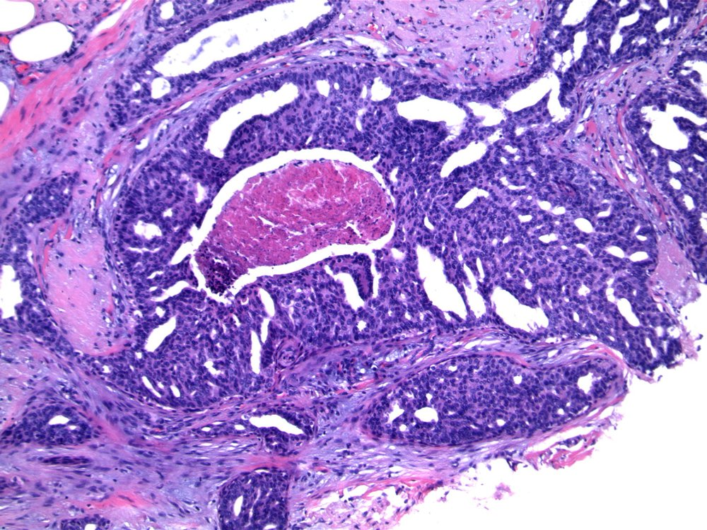 Image 2.   The epithelial proliferation forms irregular secondary spaces that are peripherally placed and show tapering bars.