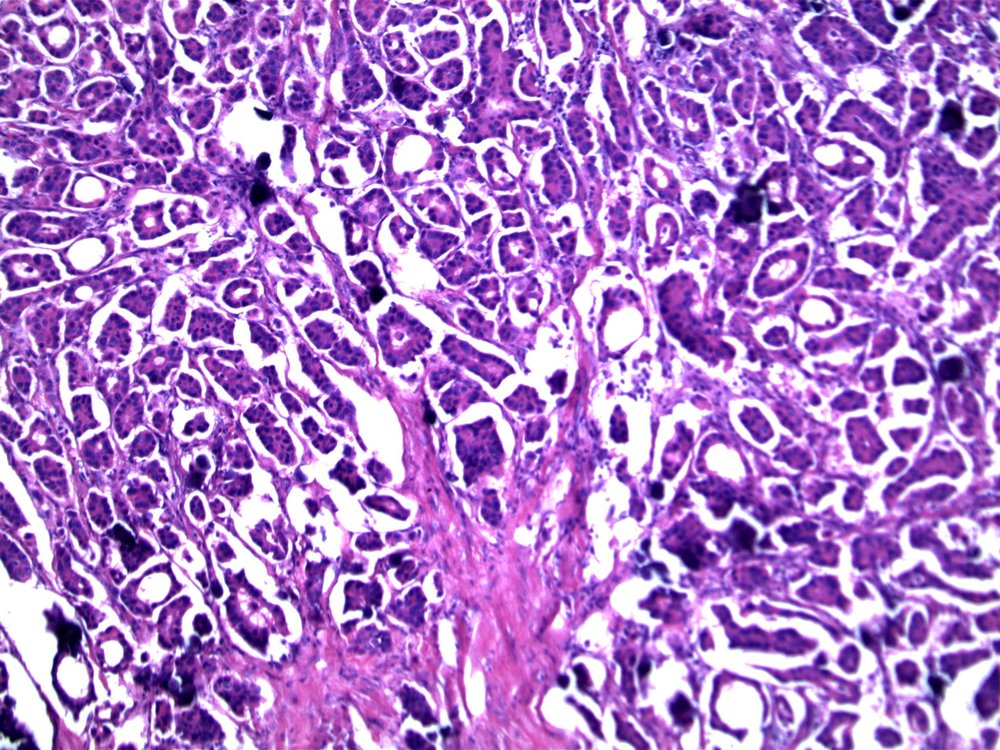 Image 7.  Small solid nests and glandular structures are present; note psammomatous calcifications.