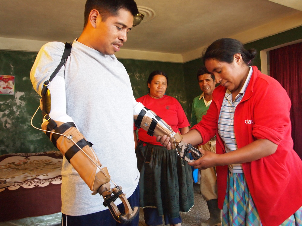 Joel's family learns how to work with his new prostheses.