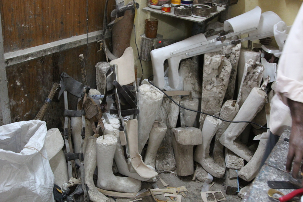 A pile of discarded molds in the corner of a prosthetic lab