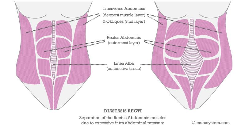 Diastasis recti illustration from MuTuSystem.com