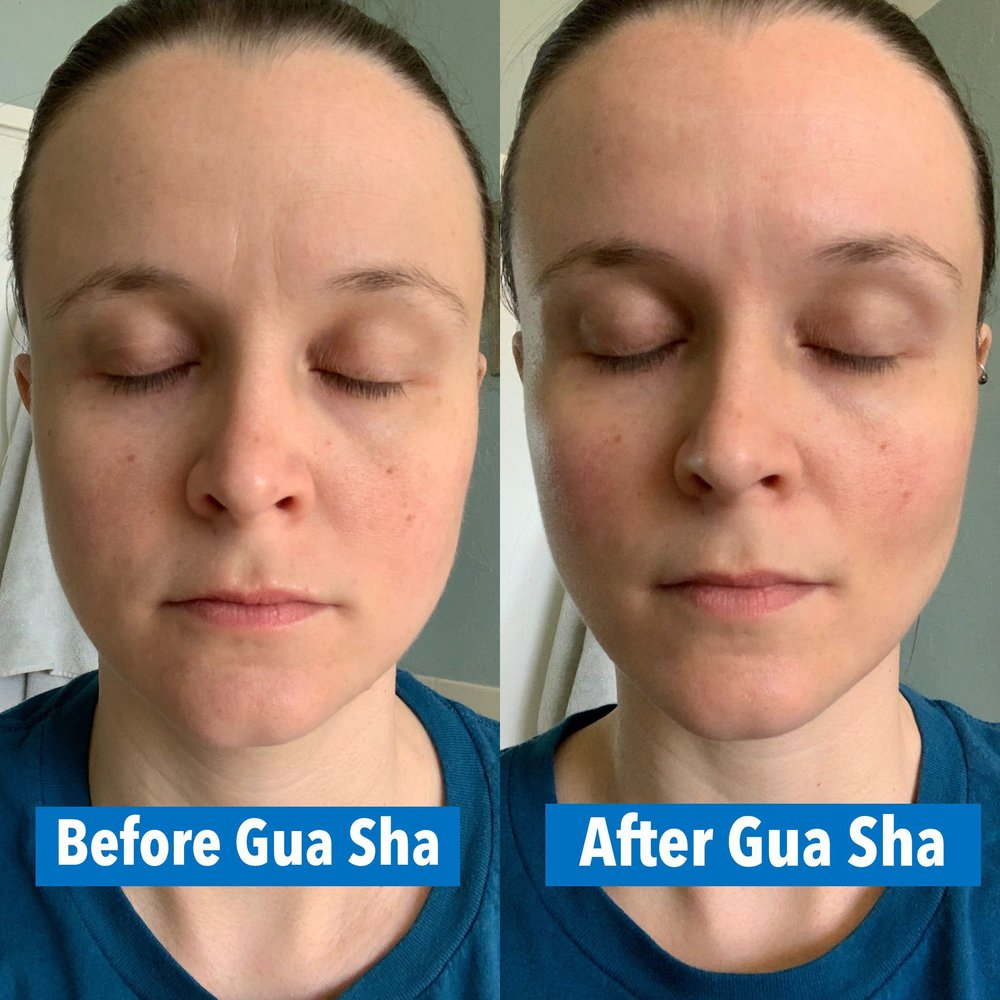before and after a single gua sha session: reduced facial puffiness and fading of fine lines