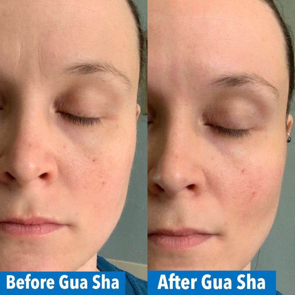 before and after facial gua sha