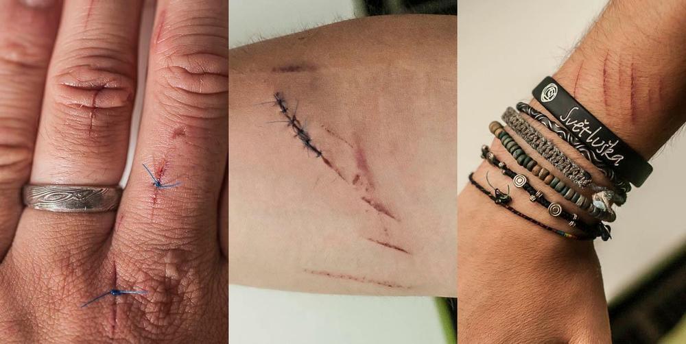 """6. července 2012, Rumburk Tak jsem poprvé nastartoval svůj krutej vrtulník!!! Výsledek: šest stehů na pravým předloktí (vypadalo to jak z Matrixu) a dvakrát po jednom stehu na prstech levý ruky, k tomu asi deset sečných zářezů leckde jinde na prstech... hustý! Vrtulník:já 1:0, zejtra vracím úder. Musel to bejt na mě pohled jak sekám trávu vrtulníkem hehe, zacákal jsem si při tom krví celej noťas... ;-) BTW: v lékařský zprávě mám napsáno """"posekán vrtulí vrtulníku"""" - no kdo tohle má? ;-)"""