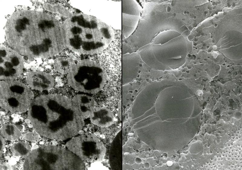 Na stáži v USDA v Beltsville (USA) v roce 1995 jsem objevil sílu zmrazovacího rastrovacího elektronového mikroskopu LT-FESEM. Dříve těžko interpretovatelné artefakty (obrázek vlevo) byly v zažívacím systému svilušek objasněny při použití této nízkoteplotní zmrazovací techniky (obrázek vpravo). Později jsme získali podobný mikroskop do Biologického centra AV ČR v Č. Budějovicích a děláme s ním dodnes divy.Foto: František Weyda