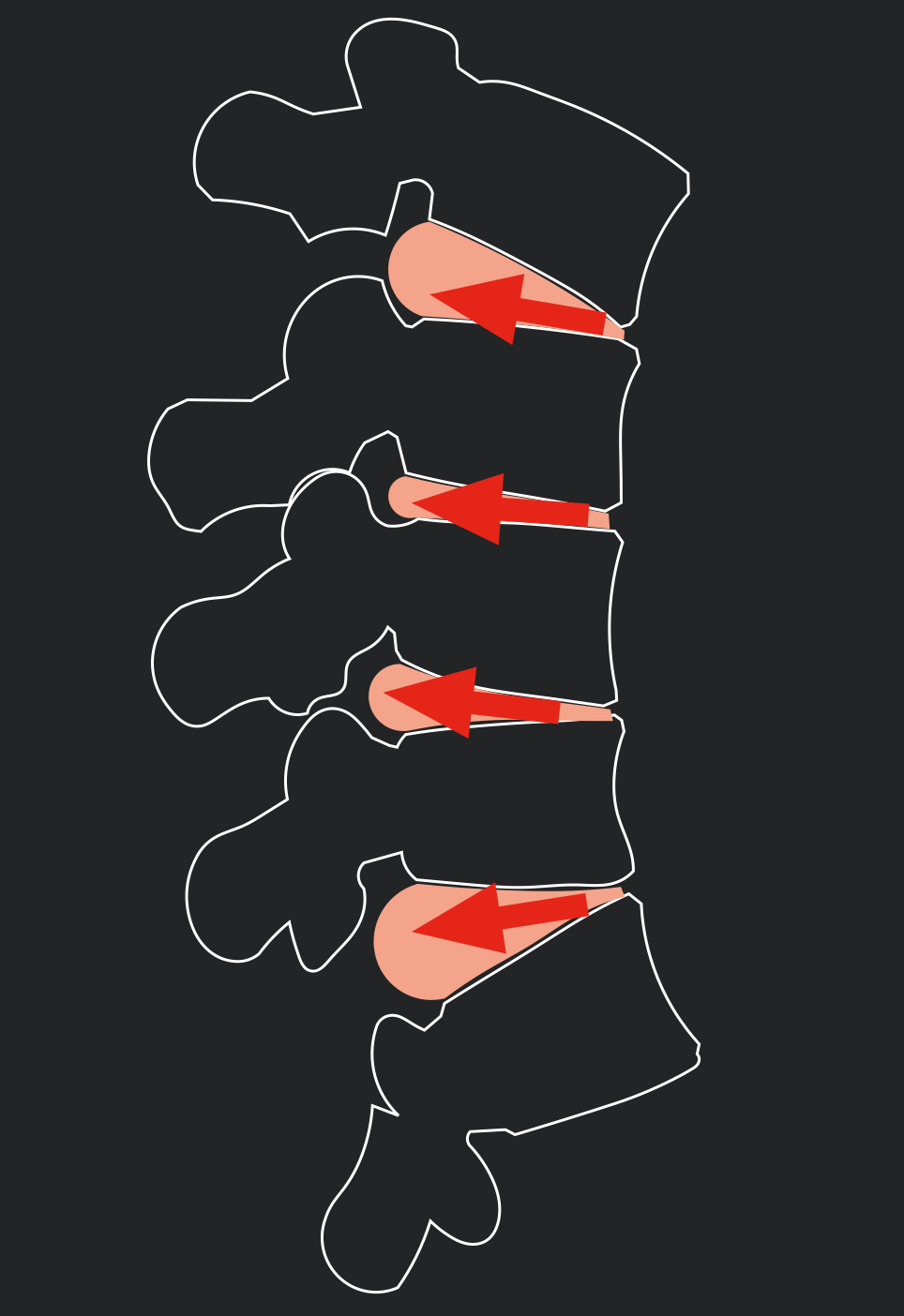 Spinal flexion opens and stretches the rear of the spinal disc.