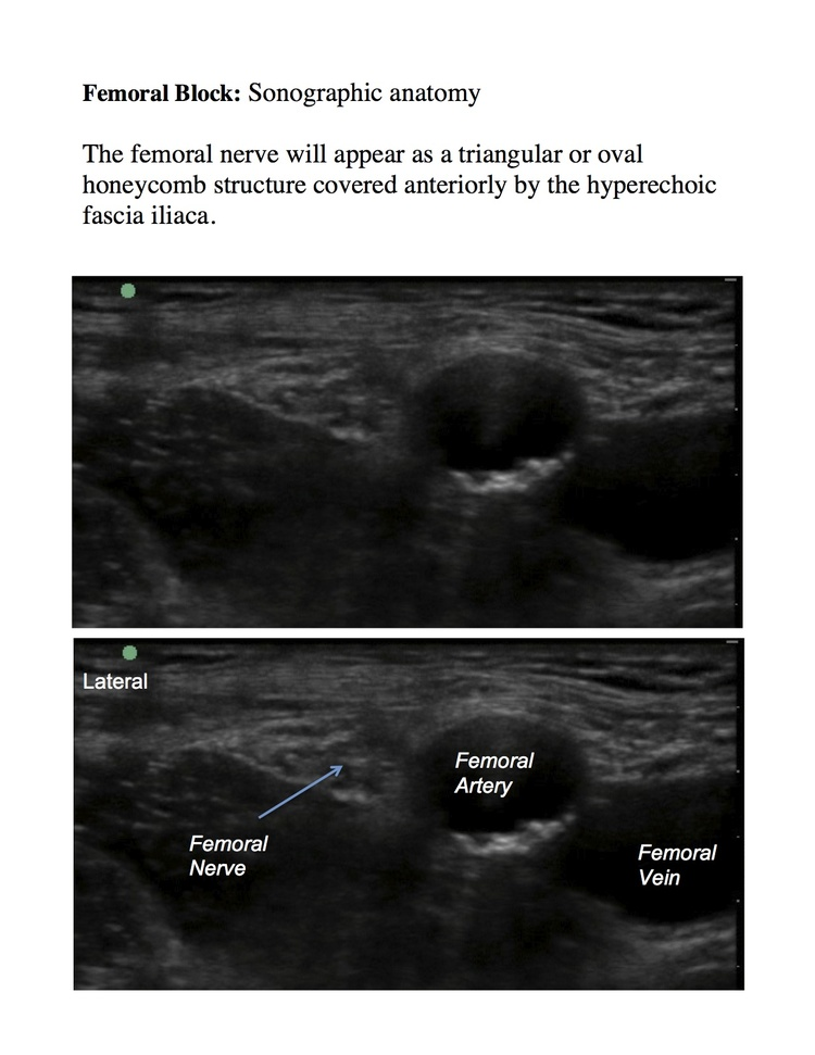 femoral — highland em ultrasound fueled pain management, Muscles
