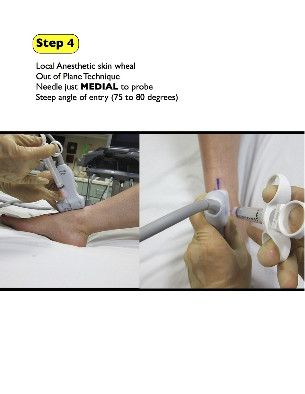 4 ankle arthrocentesis final.jpg