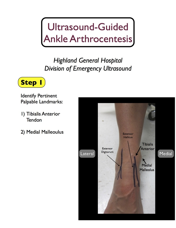 Us Guided Ankle Tap Highland Em Ultrasound Fueled Pain Management