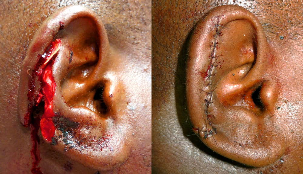 ear before after.jpg
