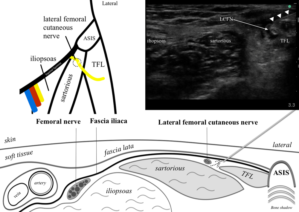 Lateral femoral cutaneous block — Highland EM Ultrasound ...