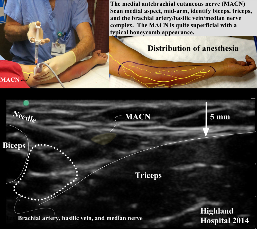 Download quick reference image HERE.  The MACN arrises from the C8 and T1 nerve roots and travels within the medial cord.  At the axilla it is quite superficial and runs down the medial aspect of the arm as a supeficial nerve in close proximity to the basilic vein.  Its branches cover the medial aspect of the arm and forearm.  When blocked at the mid-humeral level, the area of anesthesia shown is achieved.  An in-plane approach with the arm outstretched is convenient.  The nerve itself can be very superficial, its honeycomb appearance allows it to be distinguished from the surrounding connective tissue.